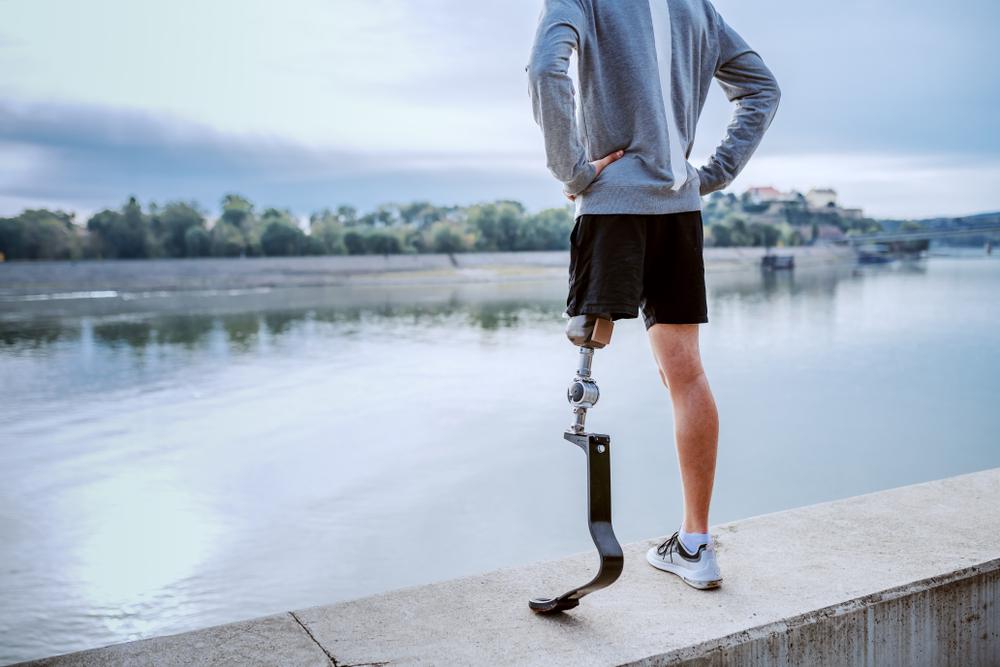 How Do Artificial Limbs Work?